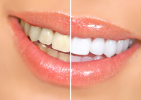 Teeth Whitening Cumberland RI
